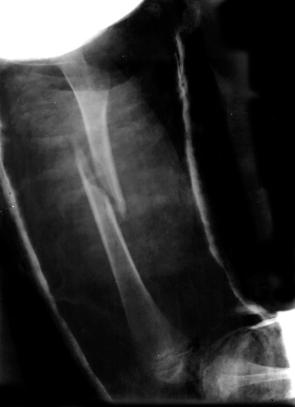 Broken_femur2